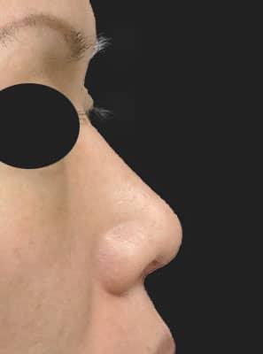 鼻柱基部下降(軟骨移植) 半年後 右側面のAfterの写真