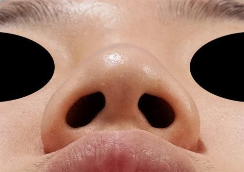 鼻尖縮小、軟骨移植、ストラット 3ヶ月後 下からのBefore写真