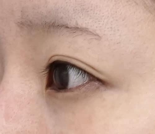 目尻切開、切らないタレ目 3ヶ月後 左斜めのBefore写真