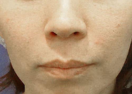 リップリフト(鼻下長短縮) 半年後のBefore写真