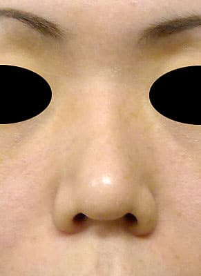 鼻柱基部下降(軟骨移植) 半年後 正面のBefore写真