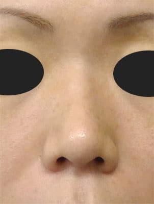 鼻柱基部下降(軟骨移植) 半年後 正面のAfterの写真