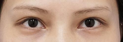 切らないデカ目2点セット(切らない眼瞼下垂、切らないタレ目) 1ヶ月後のAfterの写真
