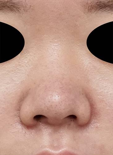 鼻尖縮小、軟骨移植、鼻柱基部下降、鼻翼縮小(内側+外側) 3ヶ月後 正面のAfterの写真