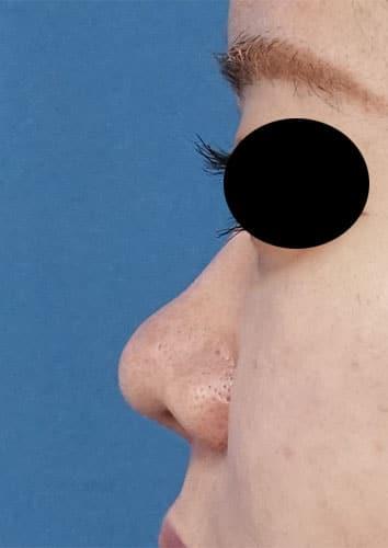 鼻尖縮小、軟骨移植、鼻柱基部下降、鼻翼縮小(内側+外側) 3ヶ月後 左側面のAfterの写真