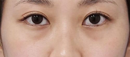 目の下脂肪取り、コンデンス脂肪注入 1ヶ月後のBefore写真