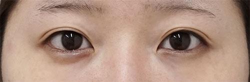 目尻切開、切らないタレ目 3ヶ月後 正面のBefore写真