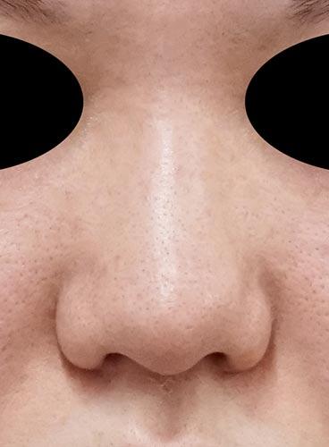 鼻尖縮小、I型プロテーゼ 3ヶ月後 正面のBefore写真