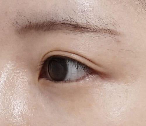 目尻切開、切らないタレ目 3ヶ月後 左斜めのAfterの写真