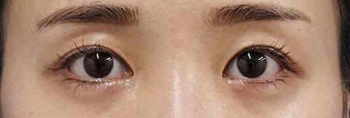 切らない眼瞼下垂+切らないタレ目 3ヶ月後のAfterの写真
