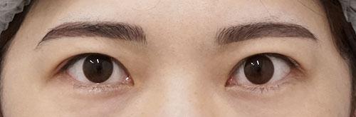 目の上のたるみ除去(眉下切開) 手術前