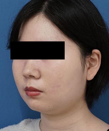 小顔脂肪吸引(ほほ・アゴ下・法令線)、ゼオミン強力小顔ボトックス 3ヶ月後 左斜めのAfterの写真