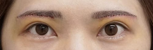 目の上のたるみ除去(眉下切開) 5日後