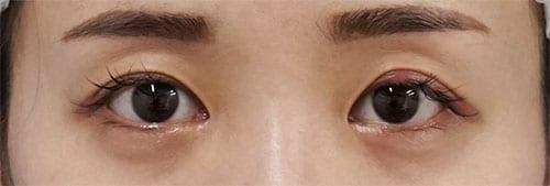 切らない眼瞼下垂+切らないタレ目 3ヶ月後のBefore写真