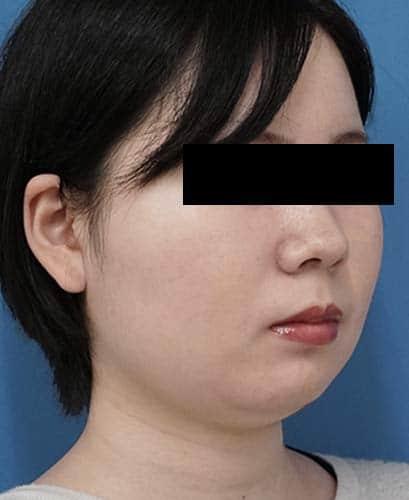 小顔脂肪吸引(ほほ・アゴ下・法令線)、ゼオミン強力小顔ボトックス 3ヶ月後 右斜めのAfterの写真