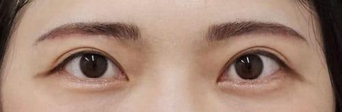 目の上のたるみ除去(眉下切開) 3ヶ月後