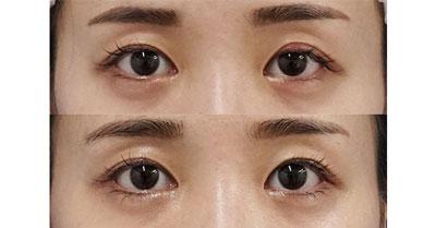 切らない眼瞼下垂+切らないタレ目 3ヶ月後