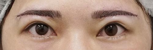 目の上のたるみ除去(眉下切開) 手術直後
