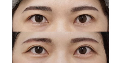 眉下切開 手術直後~3ヶ月後