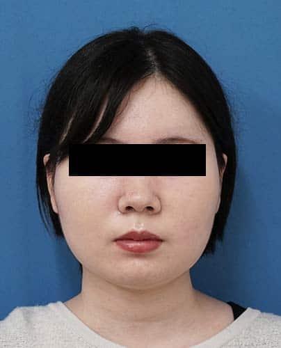 小顔脂肪吸引(ほほ・アゴ下・法令線)、ゼオミン強力小顔ボトックス 3ヶ月後 正面のAfterの写真