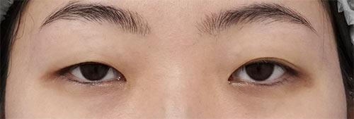 切らない眼瞼下垂プレミアム 3ヶ月後のBefore写真