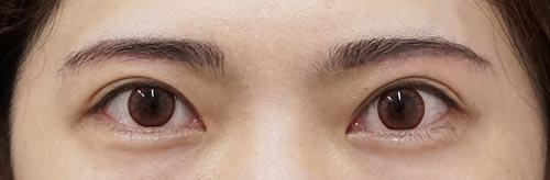 目の上のたるみ除去(眉下切開) 1ヶ月後
