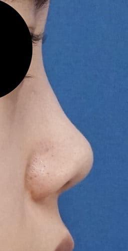 鼻尖縮小、軟骨移植、ストラット 3ヶ月後 右側面のBefore写真