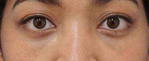 目の下脂肪取り+コンデンス脂肪注入 1ヶ月後のAfterの写真