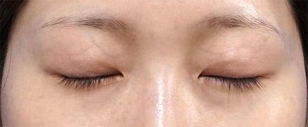 埋没法抜糸後、二重埋没法(スマートバランス) 3か月後 閉眼のAfterの写真