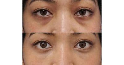 目の下脂肪取り+コンデンス脂肪注入 1ヶ月後