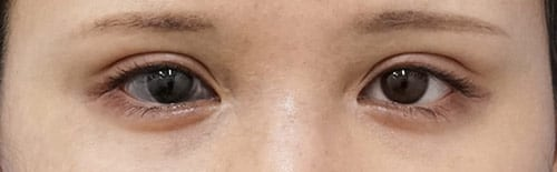 全切開、眼瞼下垂(挙筋前転術) 手術直後~3ヶ月後