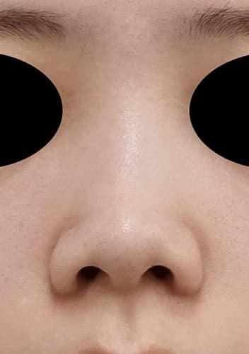 鼻尖縮小、軟骨移植、ストラット 3ヶ月後 正面のBefore写真
