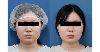 小顔脂肪吸引(ほほ・アゴ下・法令線)、ゼオミン強力小顔ボトックス 3ヶ月後