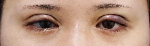 全切開、眼瞼下垂(挙筋前転術) 手術直後