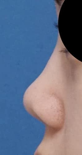 鼻尖縮小、軟骨移植、ストラット 3ヶ月後 左側面のBefore写真