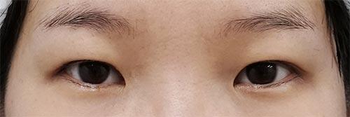 眉下切開 3ヶ月後のBefore写真