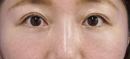 目の下脂肪取り、コンデンス脂肪注入 3ヶ月後のAfterの写真