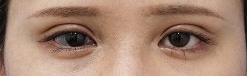 全切開、眼瞼下垂(挙筋前転術) 1ヶ月後