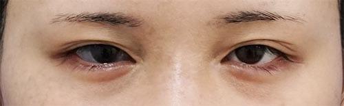 全切開、眼瞼下垂(挙筋前転術) 手術直前