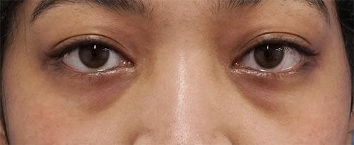 目の下脂肪取り+コンデンス脂肪注入 1ヶ月後のBefore写真