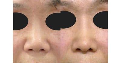 鼻尖縮小、鼻中隔延長、プロテーゼ 1ヶ月後