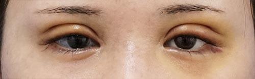 全切開、眼瞼下垂(挙筋前転術) 5日後(抜糸時)のAfterの写真