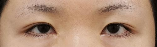 全切開、挙筋前転術(眼瞼下垂手術) 3ヶ月後のBefore写真