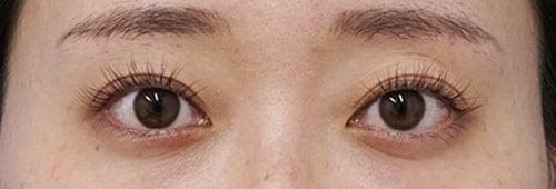 切らないデカ目2点セット(切らない眼瞼下垂+切らないタレ目) 3ヶ月後のAfterの写真