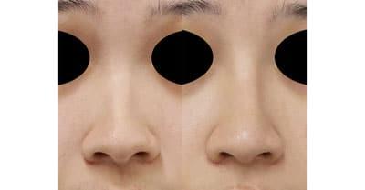 鼻尖縮小、I型プロテーゼ、鼻翼縮小(内側+外側) 3ヶ月後