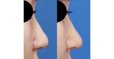 鼻尖縮小(3D法)、ストラット 3ヶ月後