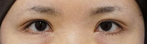 全切開、挙筋前転術(眼瞼下垂手術) 3ヶ月後のAfterの写真