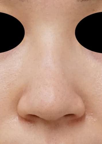 鼻尖縮小(3D法)、ストラット 3ヶ月後 正面のAfterの写真