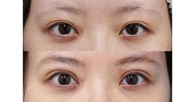 全切開、眼瞼下垂(挙筋前転術) 3ヶ月後