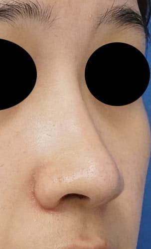 鼻尖縮小、I型プロテーゼ、鼻翼縮小(内側+外側) 3ヶ月後 右斜め